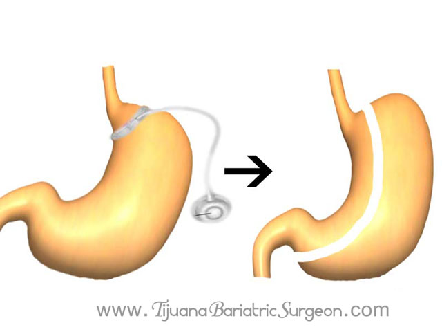 Lap band revision to gastric sleeve