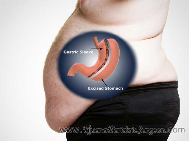 Sleeve Gastrectomy In Tijuana Cost Of Gastric Sleeve Surgery