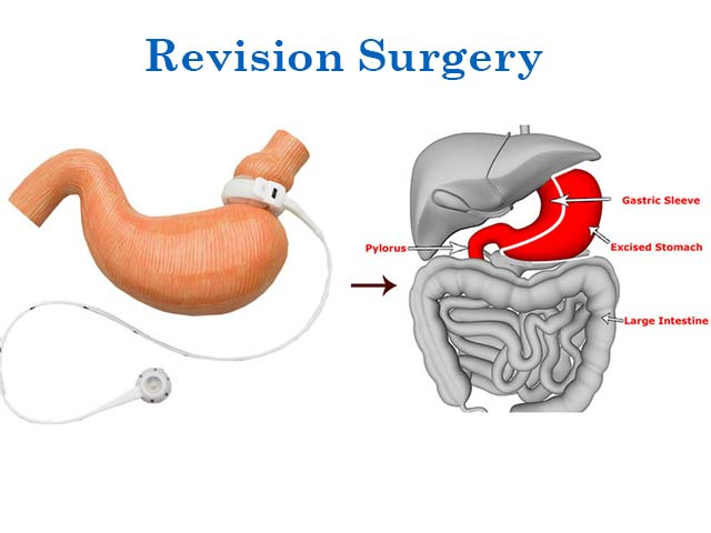 Revision surgery